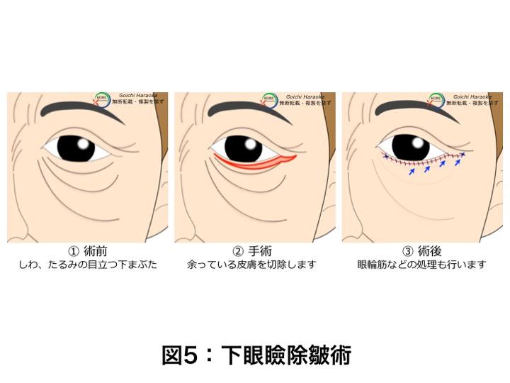 とり 瞼 の たるみ