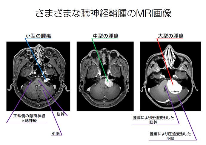 神経 鞘 腫