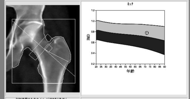 骨密度検査:DXA(Dual Energy X-Ray Absorptiometry)法